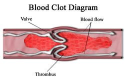What are the Causes of Blood Clots?