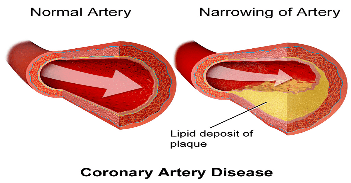 What You Need To Know To Survive With Coronary Heart Disease