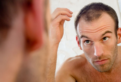Are You Thinking about How to Get Rid of Pimples on Scalp(Scalp Acne)?Then try these Remedies