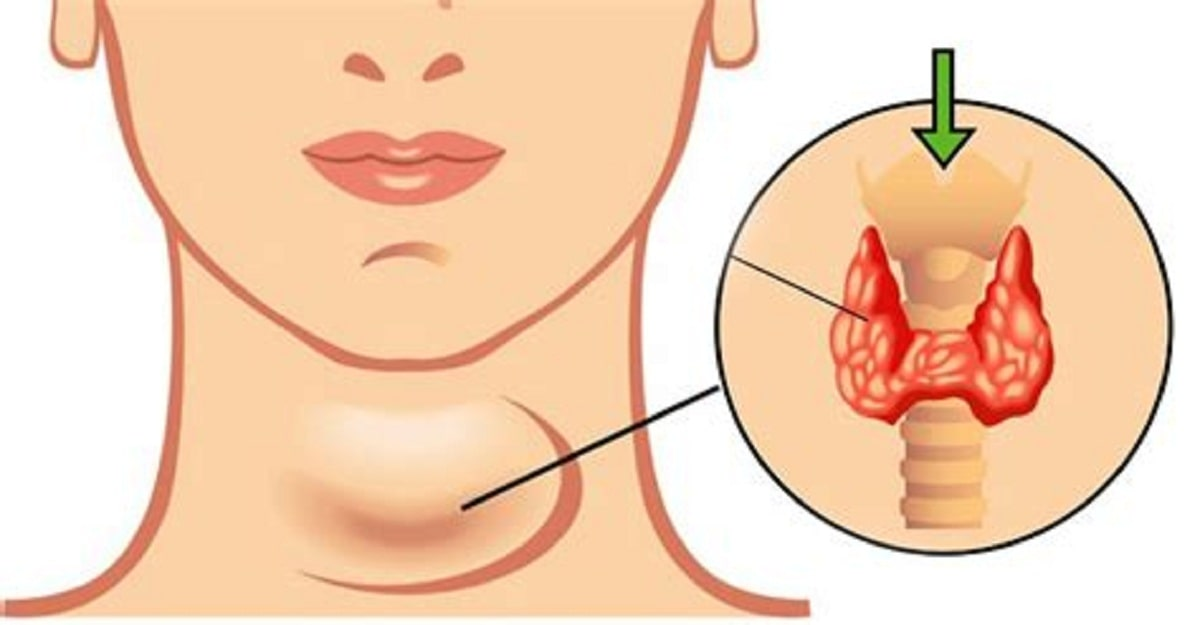 Hypothyroidism Diet Plan : Foods for Underactive Thyroid