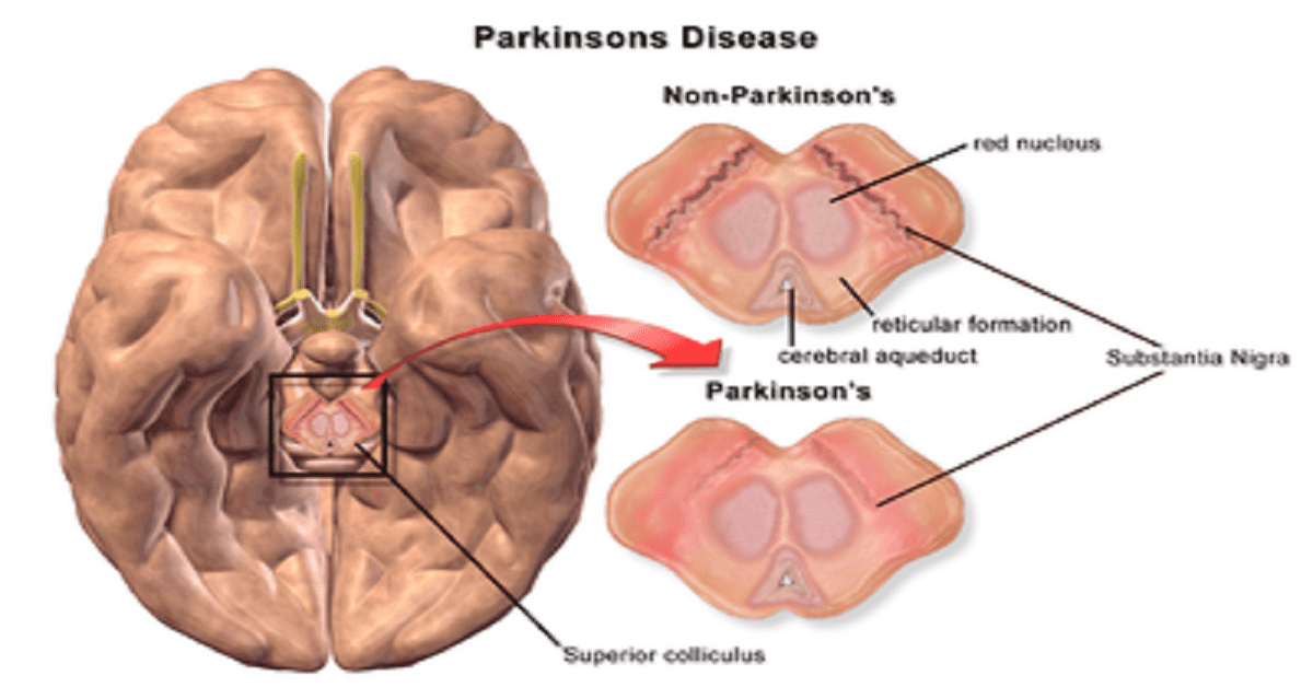 Parkinson Disease Symptoms,Causes,Treatments