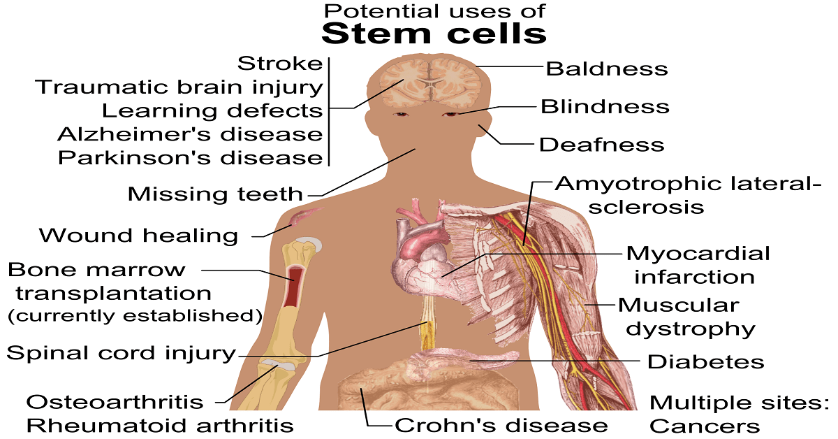 Good News on Stem Cell Treatment for Diabetes