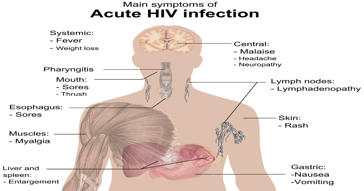 What Are The Early HIV Symptoms In Men And Women?