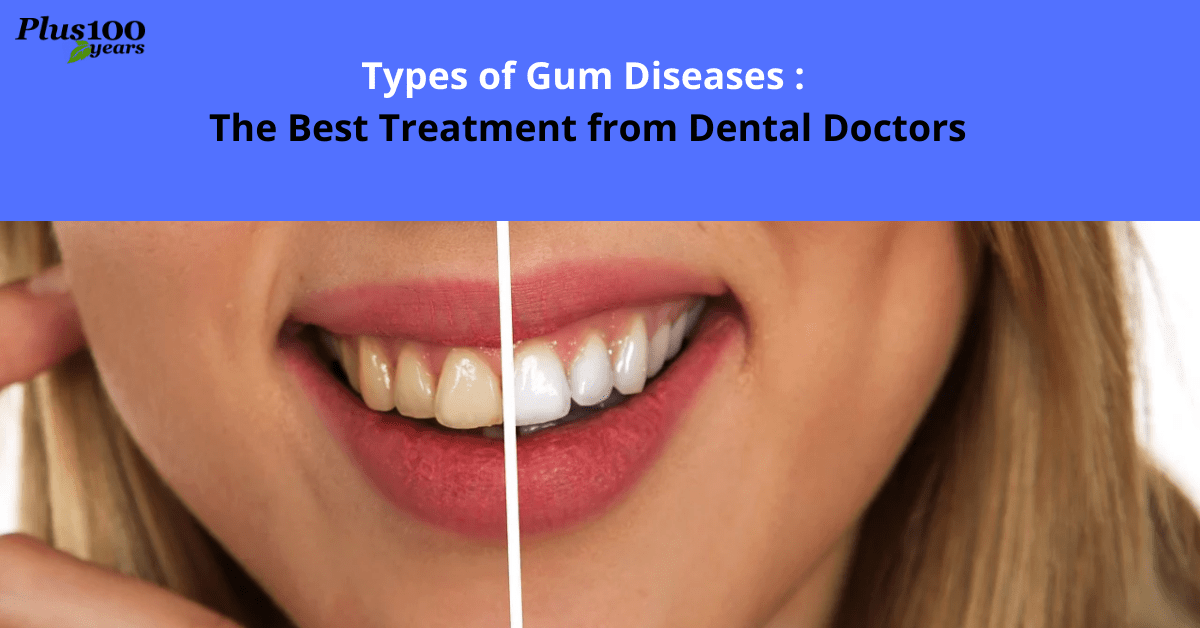 Types of Gum Diseases: The Best Treatment from Dental Doctors
