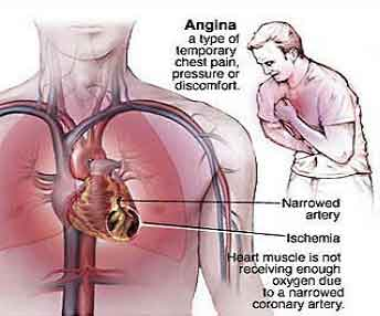 How to Prevent Angina? written by:Dr.Sukhvinder Singh Sr.Cardiologist Delhi