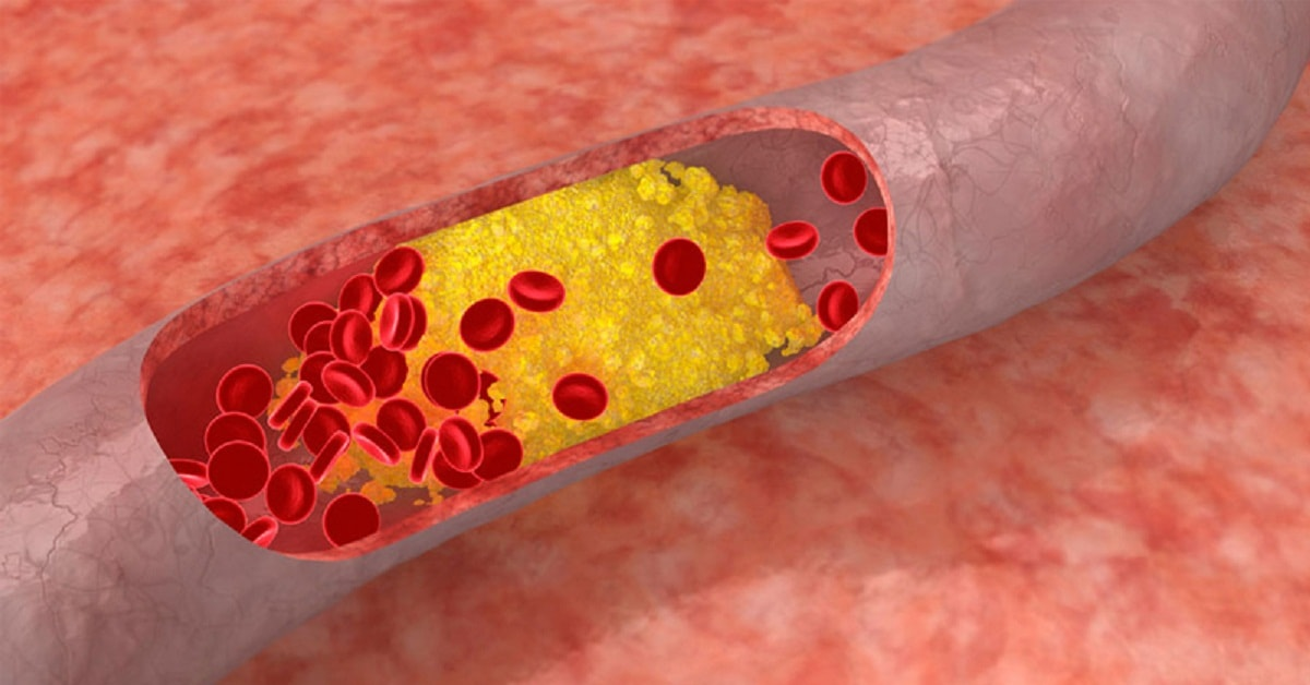 How Cholesterol leads to Heart Disease?