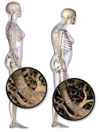 Know the major Risk Factors of Osteoporosis, to overcome them