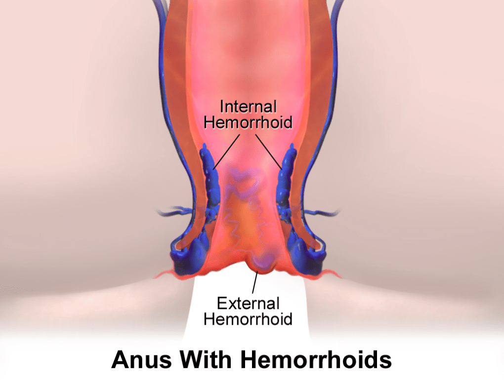 Natural Remedies for Hemorrhoids - A Smarter & Swifter Way