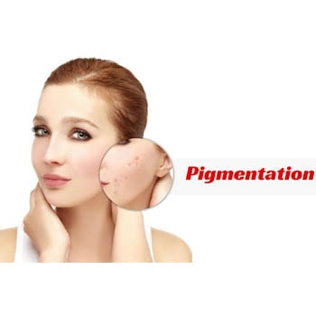Pigmentation Is No More a Rigid Skin Problem. Try These Foods to Reduce Skin Pigmentation