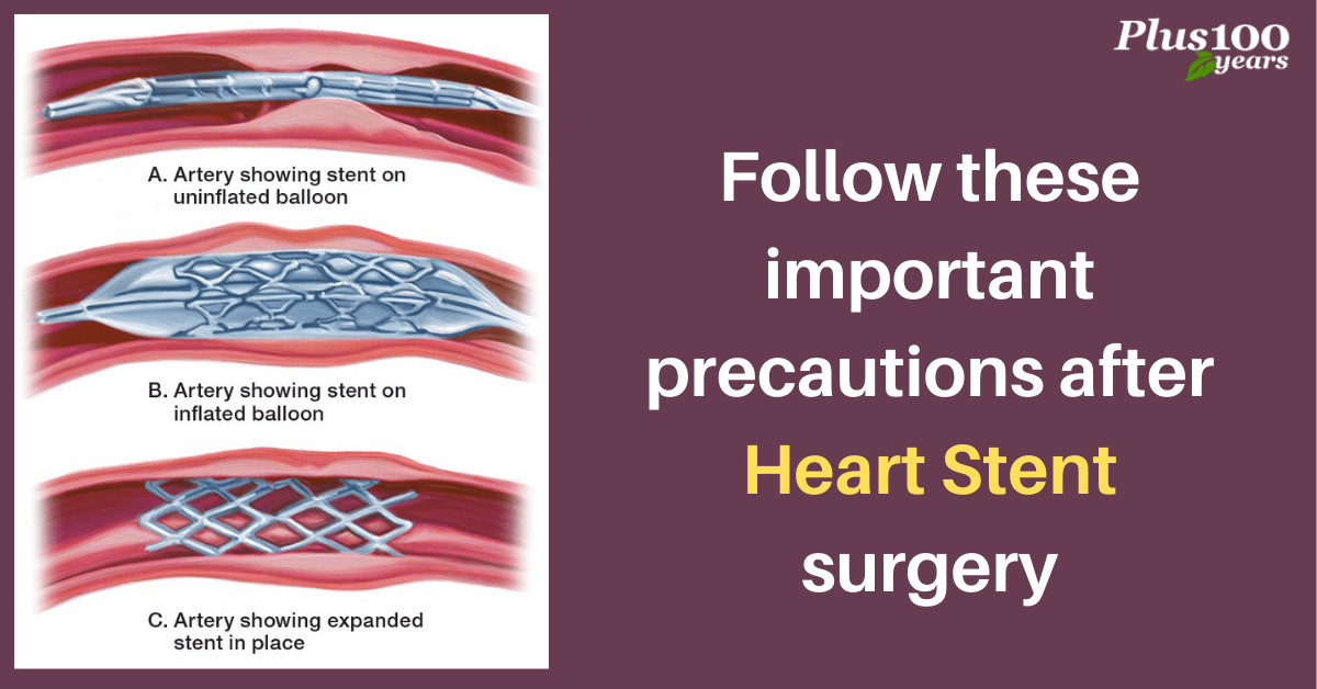 Follow these important precautions after Heart Stent surgery