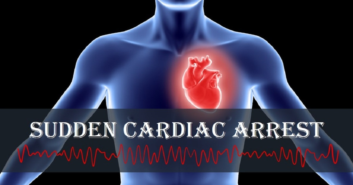 How to Treat Sudden Cardiac Arrest?