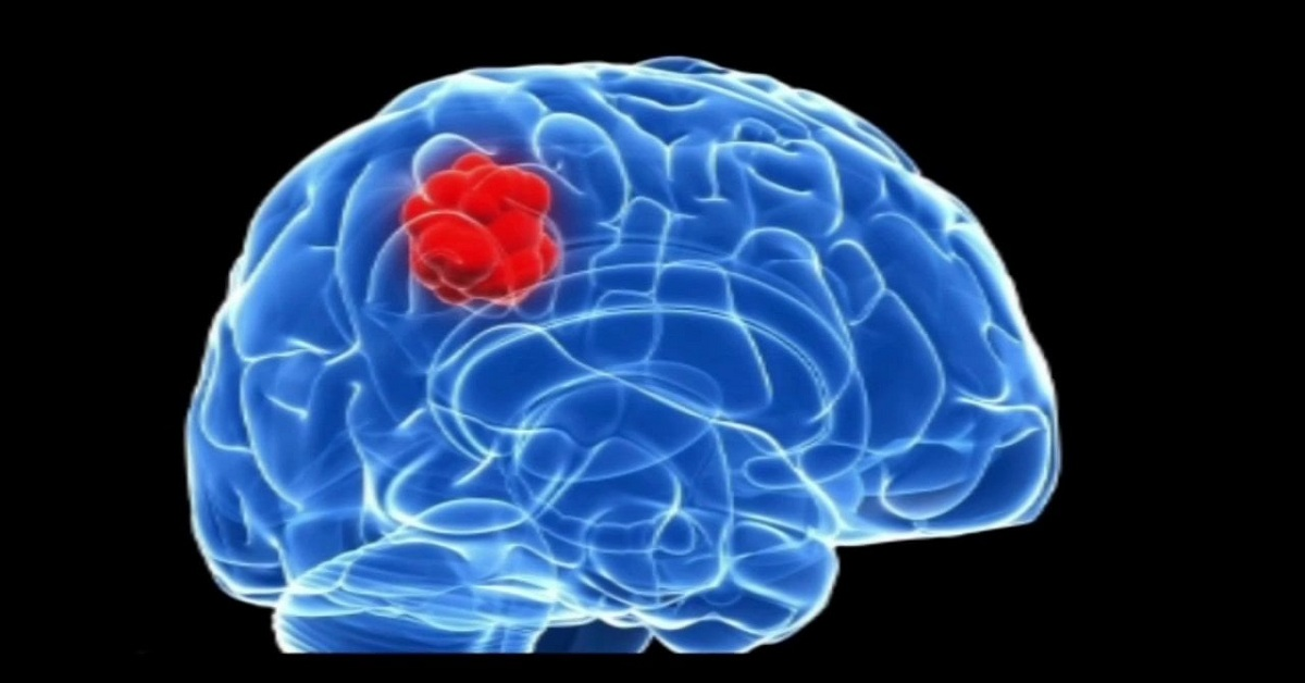What are the Symptoms and Treatment for Brain Tumor
