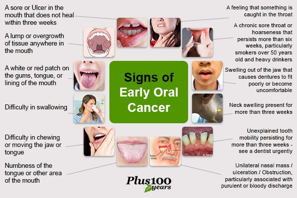 Signs of oral cancer || Signs of oral cancer