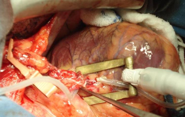 Bypass surgery