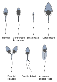 Morphology of the Sperm