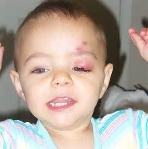 Eyelid Problem in kid