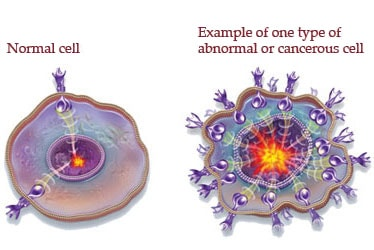 Cancerous cells in the body
