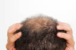 Home remedies for bald head