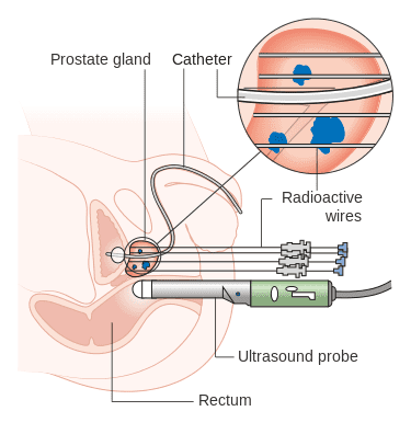 High dose brachytherapy for prostate cancer