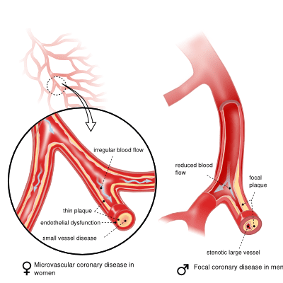 Coronary heart disease symptoms