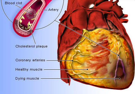 Cardiovascular Disease Heart Attack