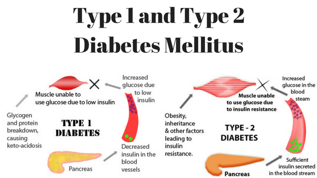type 1 and type 2 diabetes mellitus