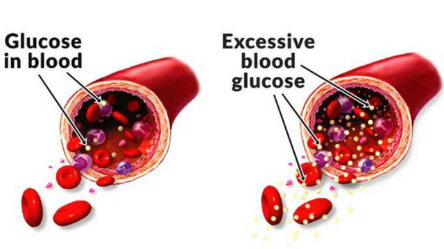 All About Blood Glucose Levels