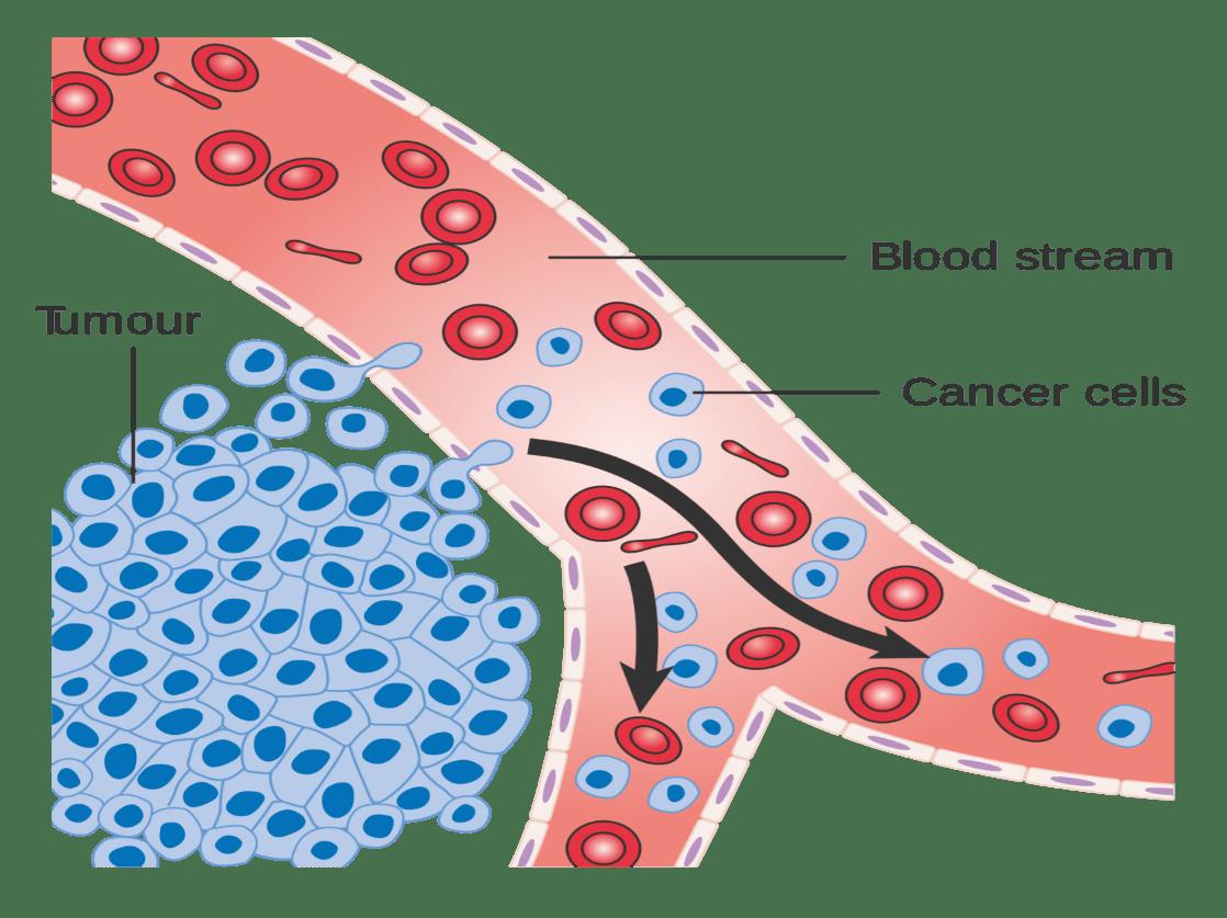 Tumor Cancer Cells