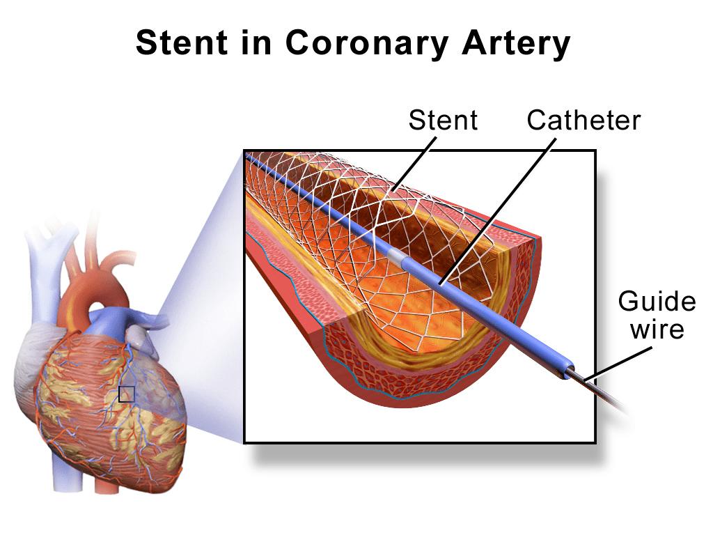 Stent in Coronary Artery || Coronary Stent