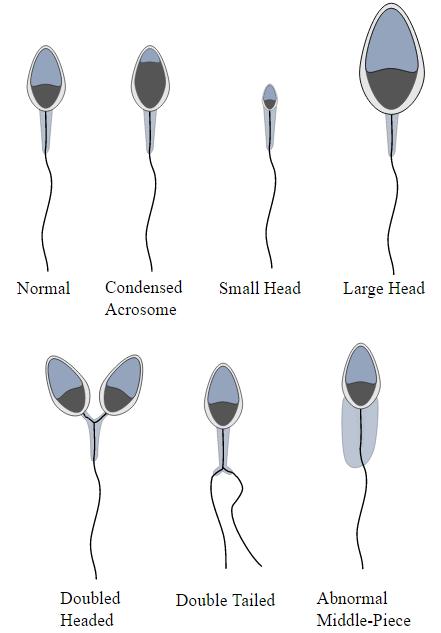 Morphology of the Sperm