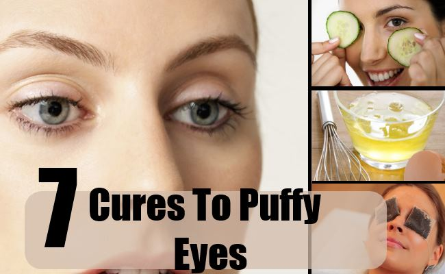 get rid of puffy eyes