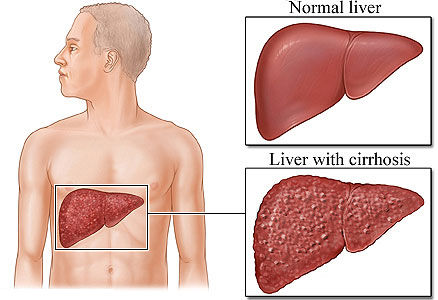 causes of liver failure