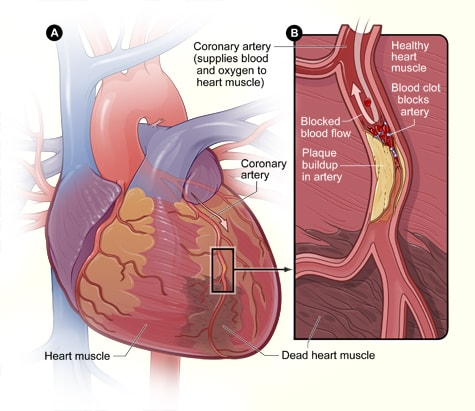 invasive coronary bypass surgery