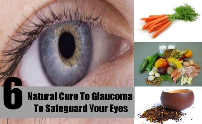 glaucoma facts