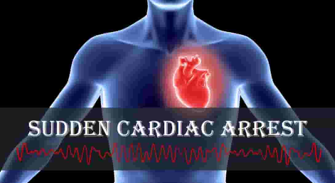 How to Treat Sudden Cardiac Arrest