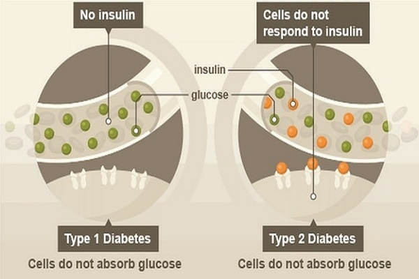 Type 1 diabetes and type 2 diabetes