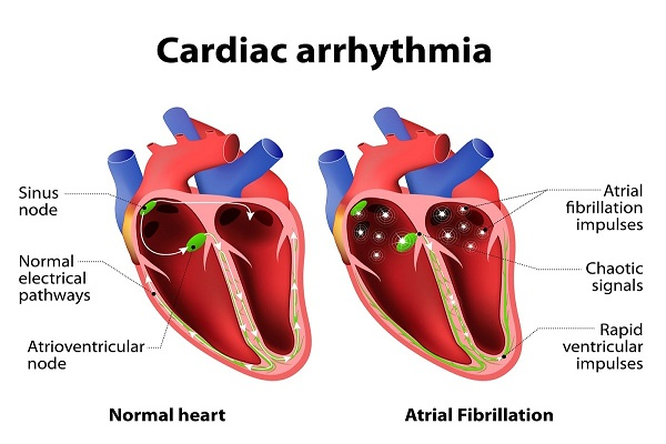 Cardiac arrest or Cardiac arrhythmia