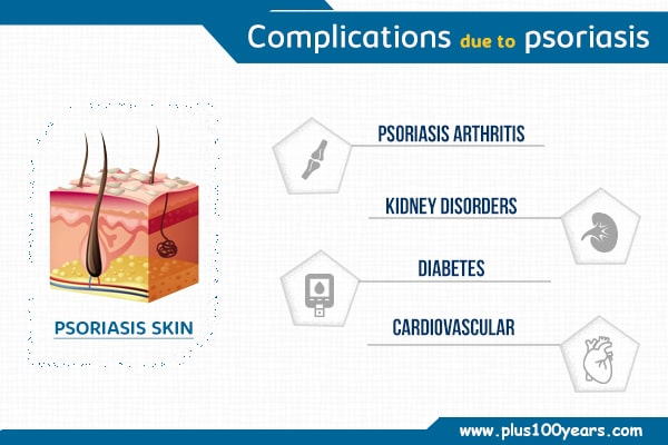Complications due to Psoriasis