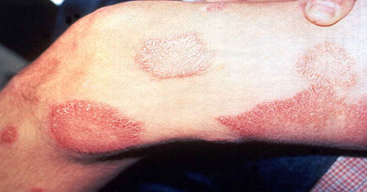 What is Leprosy?