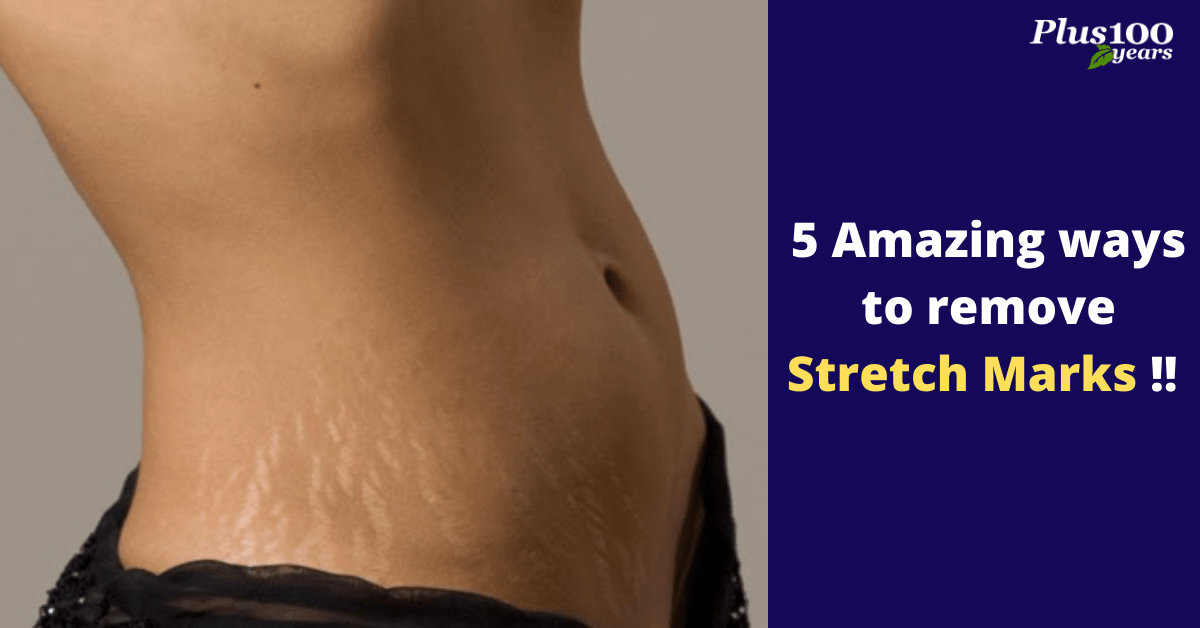 Top 5 Home Remedies For Stretch Marks