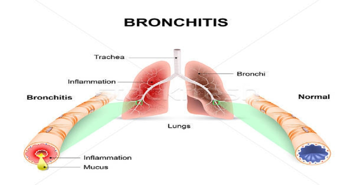 Top 5 Home remedies for Bronchitis