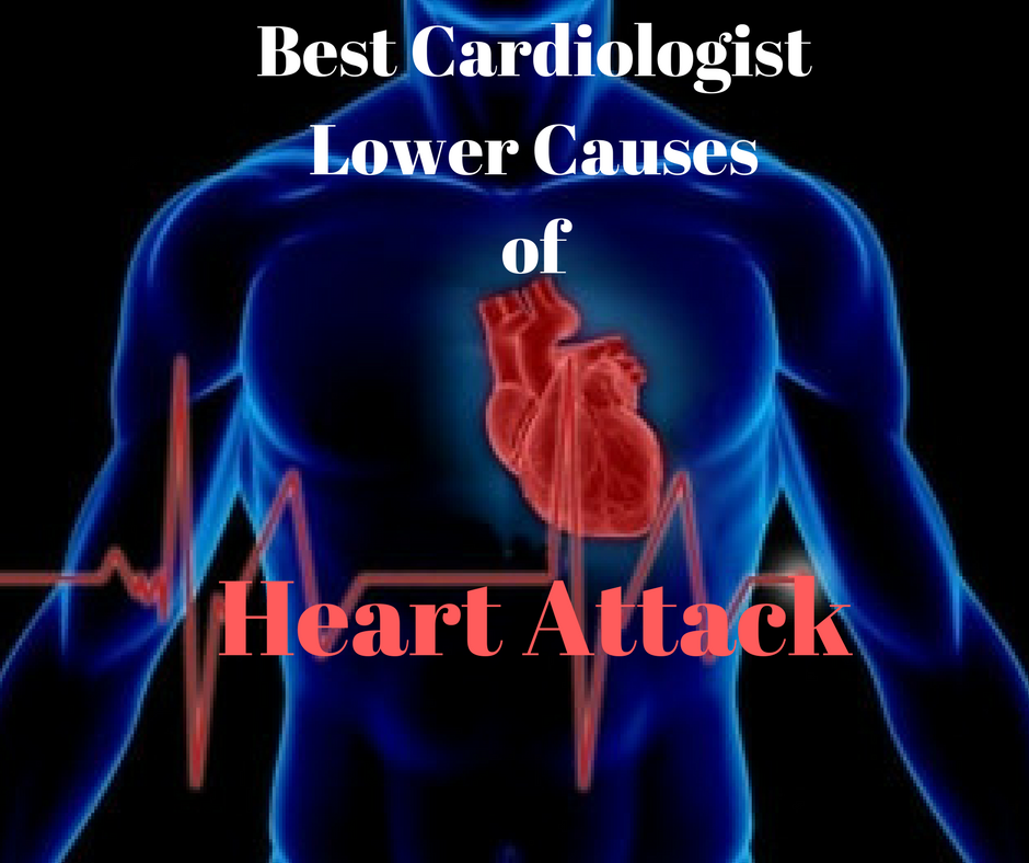 How Can a Best Cardiologist in Hyderabad Help Lower Causes of Heart Attack?