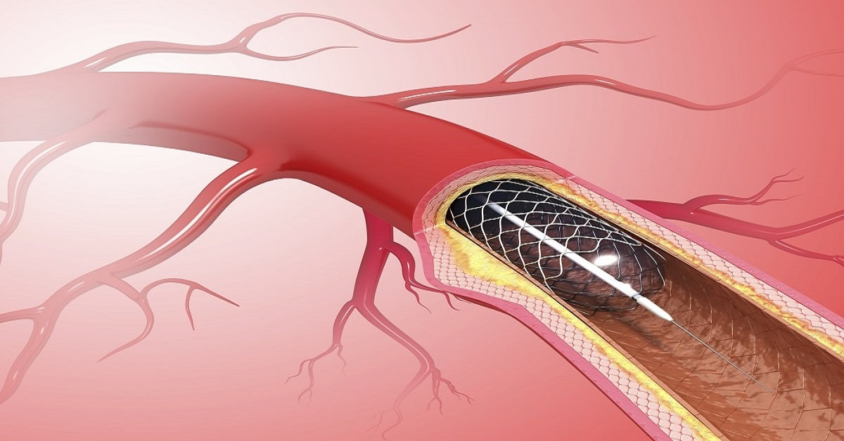 What is the Purpose of a Coronary Stent for Heart Problem?