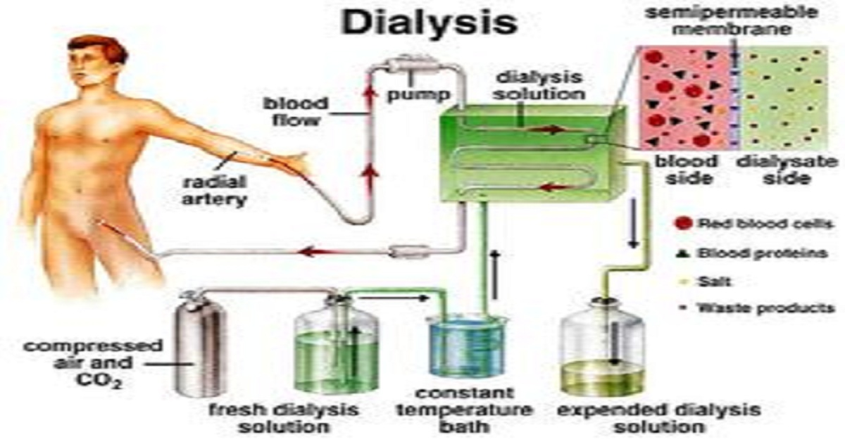 All you need to know about what is dialysis?