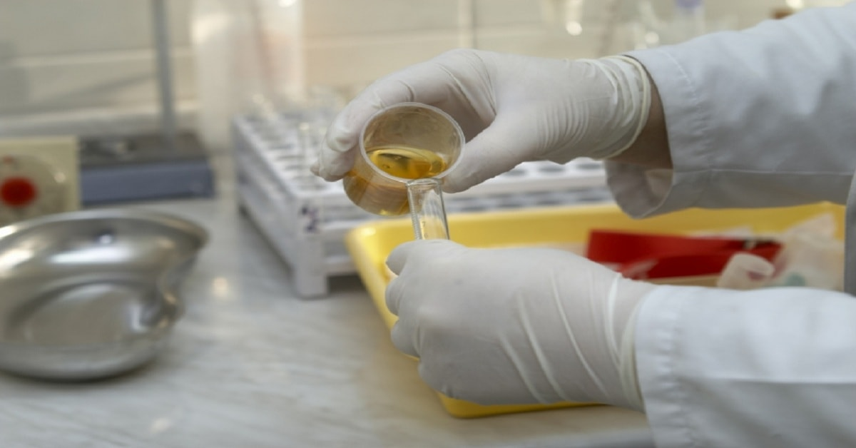 Know about the Purpose and use of Urinalysis test