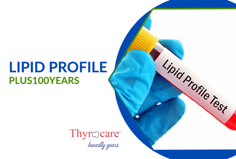 LIPID PROFILE TEST