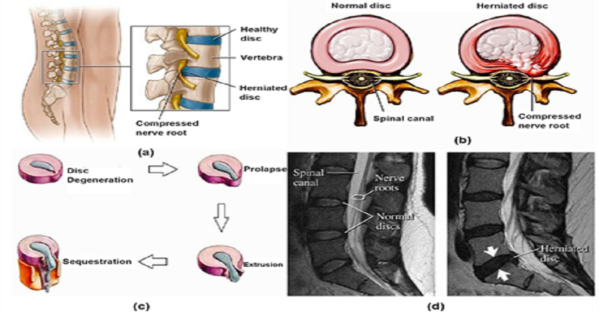 What are the Symptoms of Prolapsed Disc?