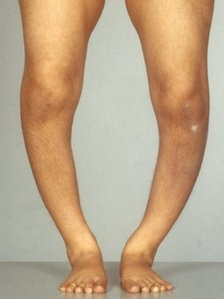 Know Signs and Symptoms of Rickets & Who gets affected by Rickets?