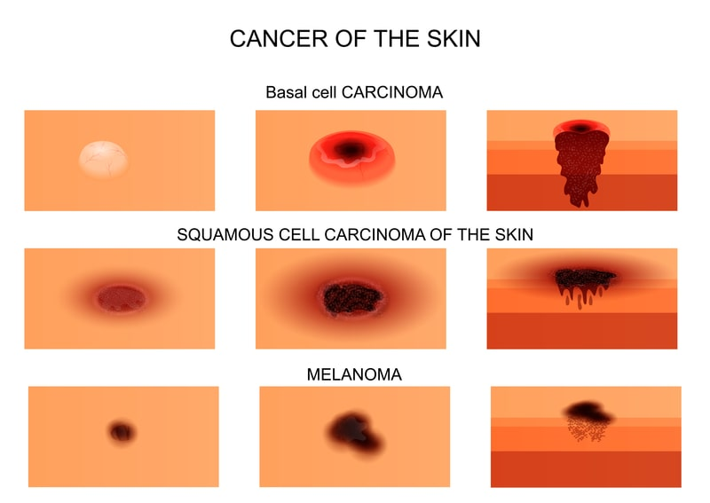 What are the symptoms of skin cancer