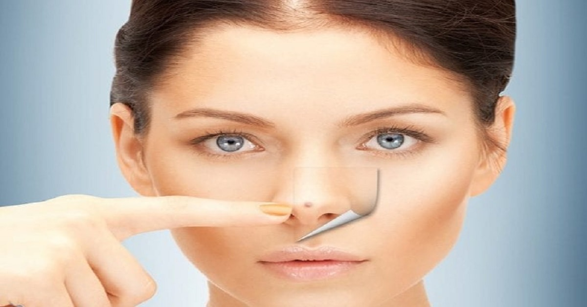 How to Remove Blackheads and Scars Using Lemon Juice